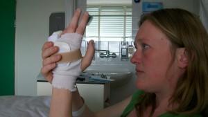 nasleep van mijn ongeluk in 2003, ruim zeven jaar later, kort na een zoveelste operatie aan aan mijn hand